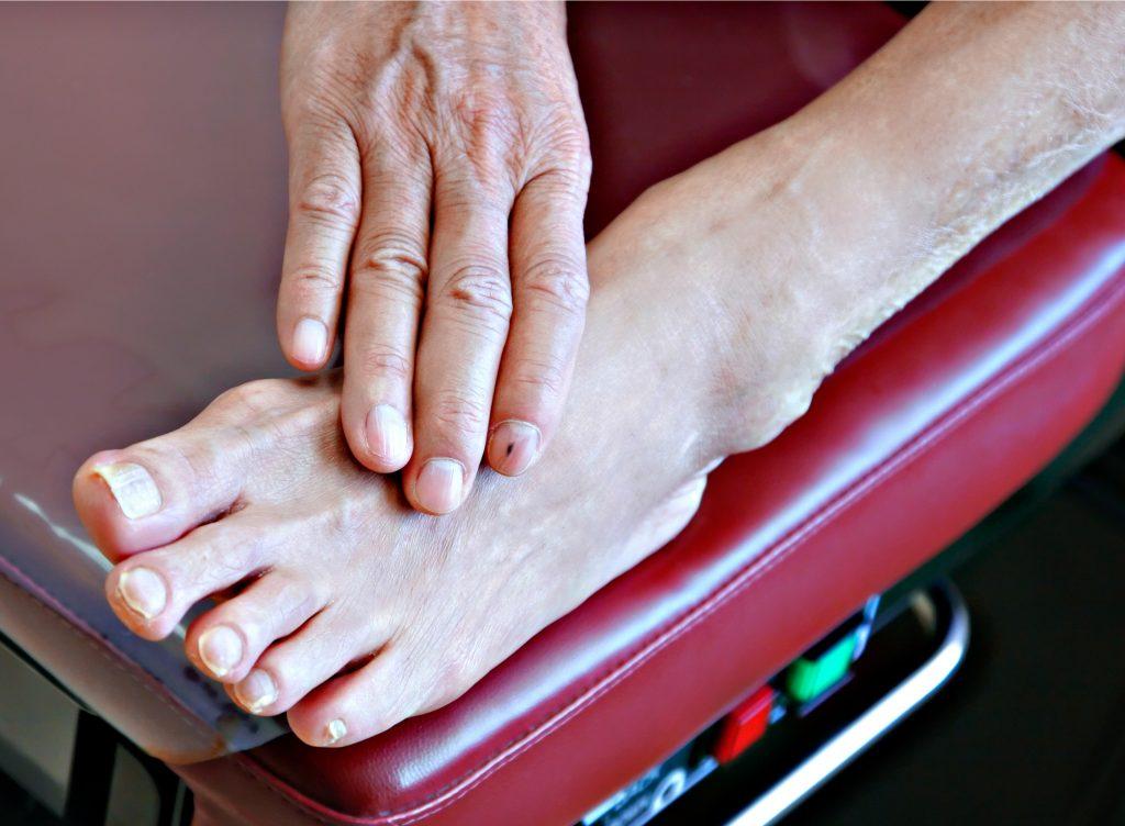 diabetic patient foot on examination bench